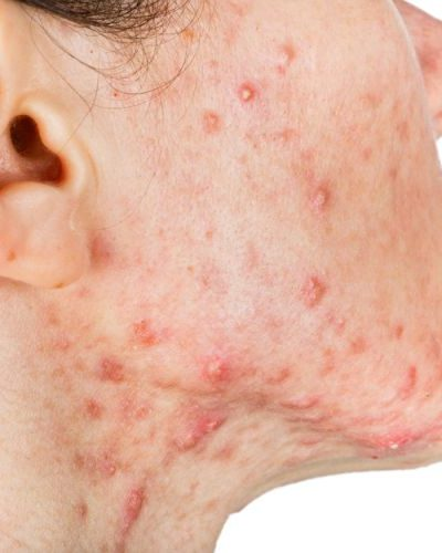 6 Proven Ways To Treat Acne Inside And Out