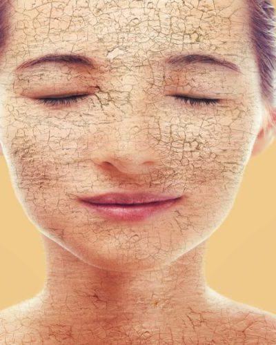 5 Tips For Moisturizing Dry Skin