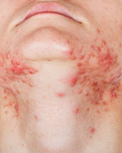 7 Tips For Preventing Folliculitis Scars
